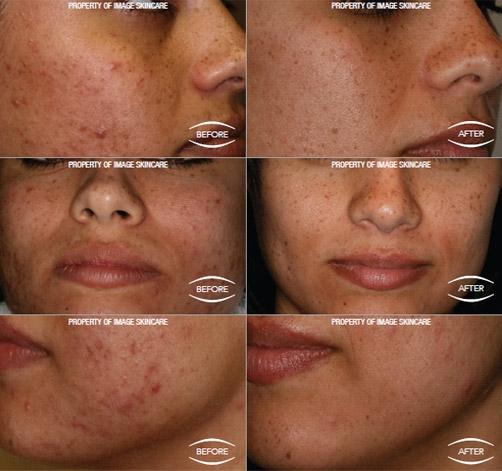 salicylzuur acne